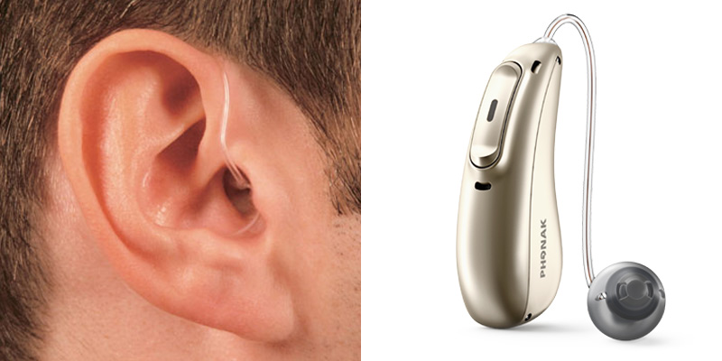 Receiver-in-the-ear (RITE)